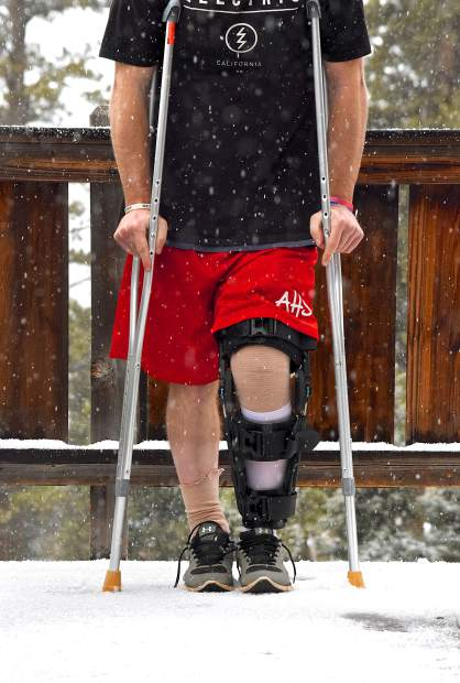 KneeHab: Why physical therapy after injury is never optional